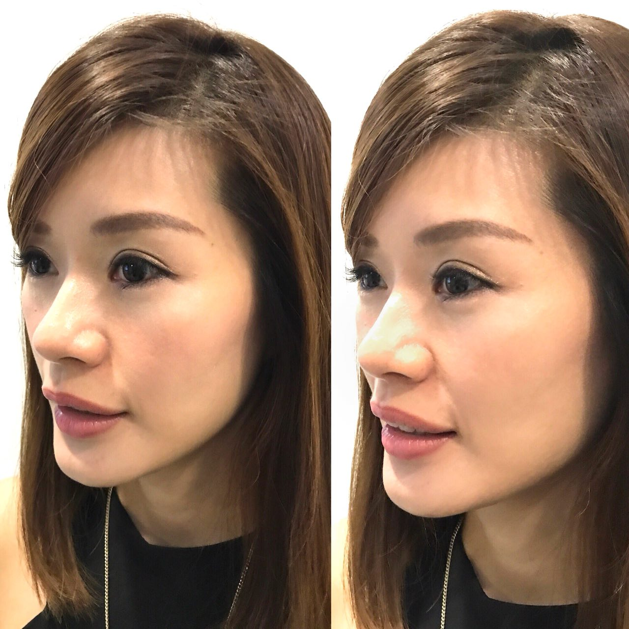 Celevenus aesthetic, Celevenus Review, Cindy, Dr Dylan Chau, Lecinlurve, Sculptra Review, Sculptra Sg